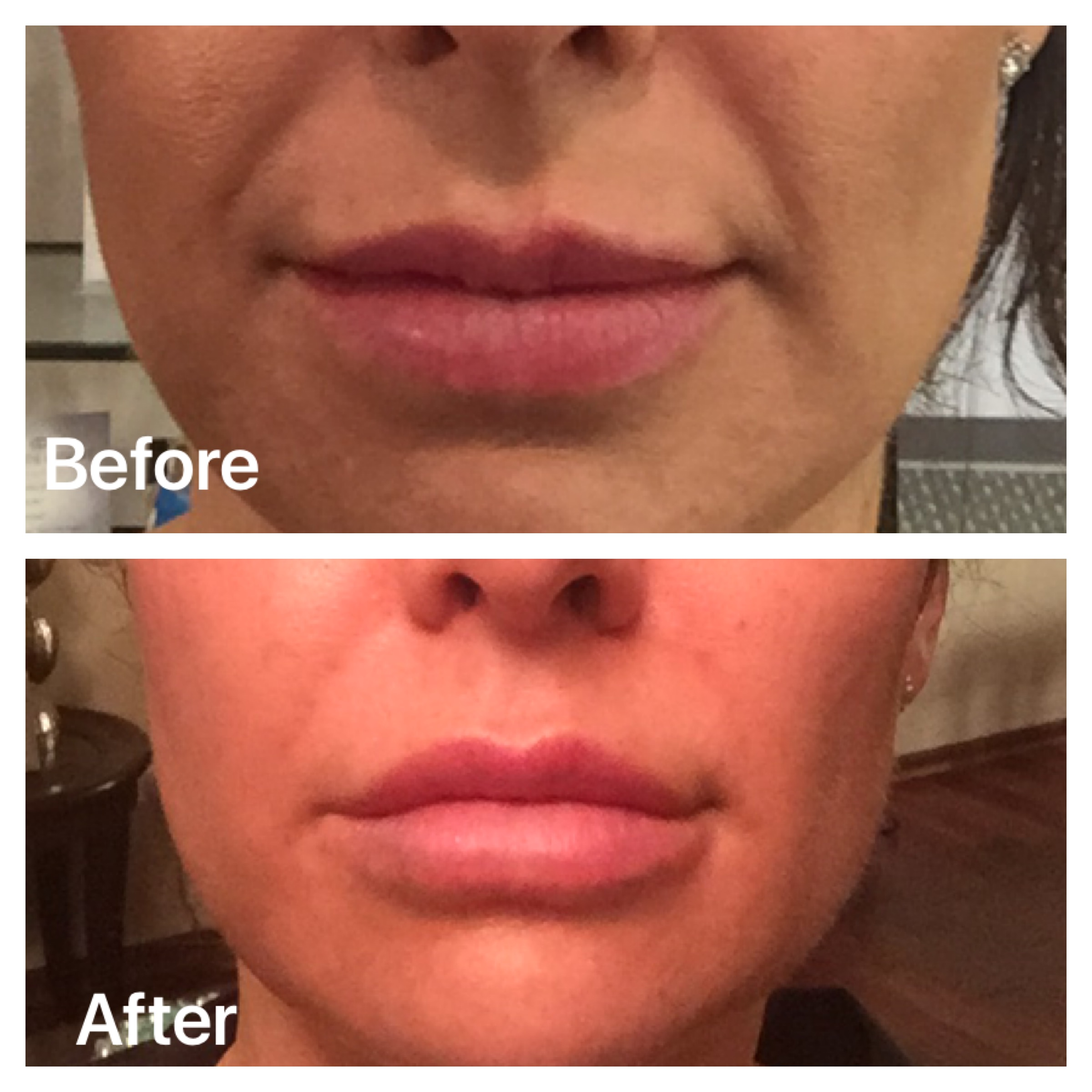 Next Generation Fillers Galderma, Restylane Refyne and Defyne | Minneapolis St. Louis Park Woodbury MN | Aesthetica
