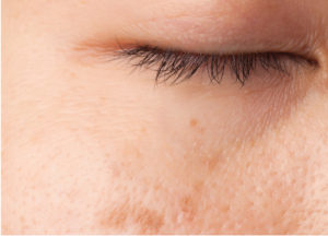 Treatment for large pores  Skin Pen - Infini - Hydrafacial   Aesthetica Skin Health Wellness