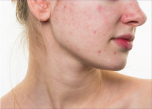 Rosacea Skin Treatments | St. Louis Park - Woodbury MN | Aesthetica Ski