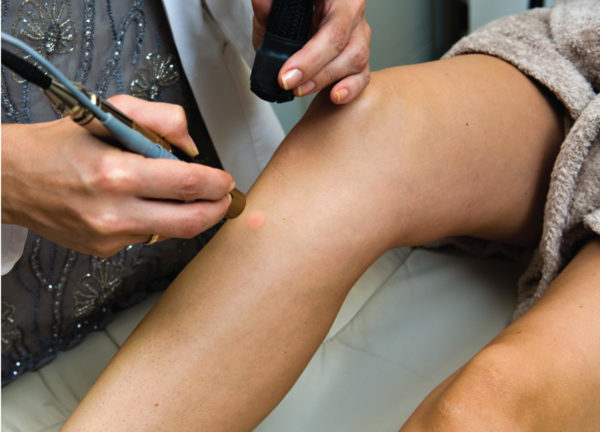 unwanted hair removal   Laser Hair Removal Minneapolis   Aesthetica