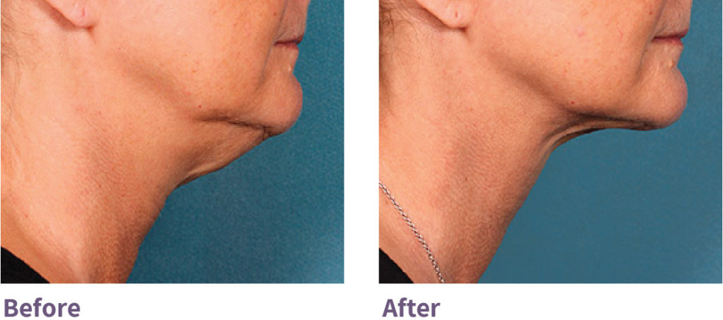 Kybella Eliminate Double Chin Minneapolis St. Louis Park Woodbury MN | Aesthetica Skin Health