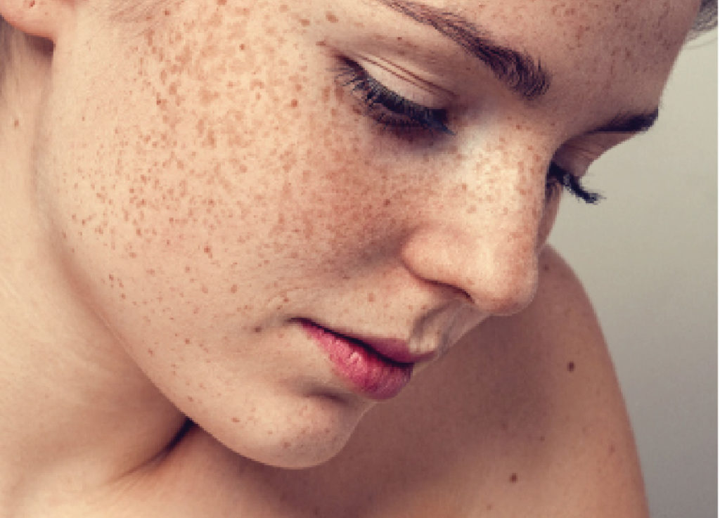 Melasma Skin Treatments | Minneapolis St. Louis Park Woodbury | Aesthetica Skin Health & Wellness