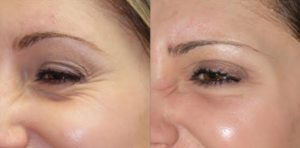 Botox injections St. Louis Park MN Aesthetica Skin Health