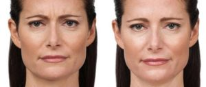 Botox Injections St. Louis Park Woodbury MN Aesthetica