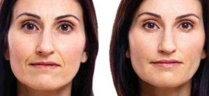 Facial Filler St. Louis Park MN Aesthetica
