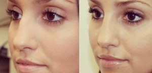 St. Louis Park MN NonSurgical Rhinoplasty_before_after_1