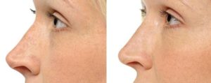 NonSurgical Rhinoplasty St. Louis Park MN_before_after_2