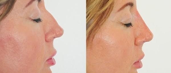 St. Louis Park MN NonSurgical Rhinoplasty_before_after_3