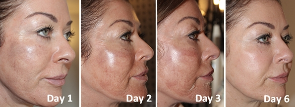 The Perfect Derma Clinical Facial Peel | St. Louis Park Woodbury MN | Aesthetica Skin Health and Wellness