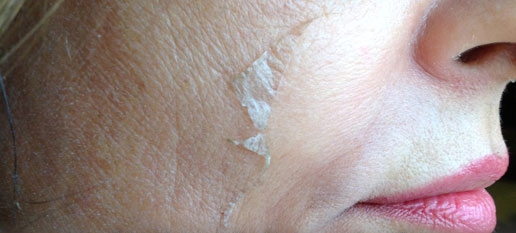 The Perfect Derma Peel Clinical Facial | St. Louis Park Woodbury MN | Aesthetica Skin Health