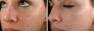 Skinpen Treatments St. Louis Park Edina Woodbury MN