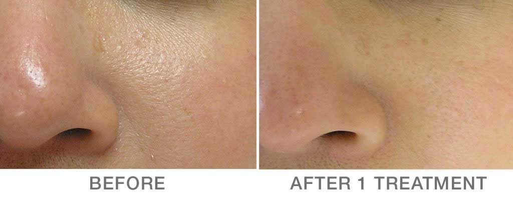 HydraFacial Before and After photo Minneapolis MN | Aesthetica